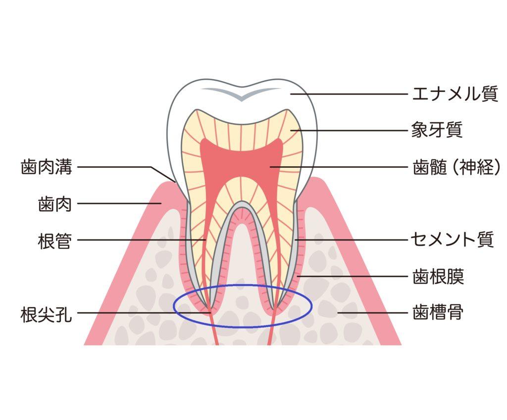 嚢胞 治療 歯根
