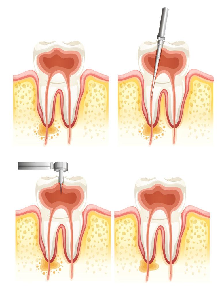 歯根 嚢胞 治療