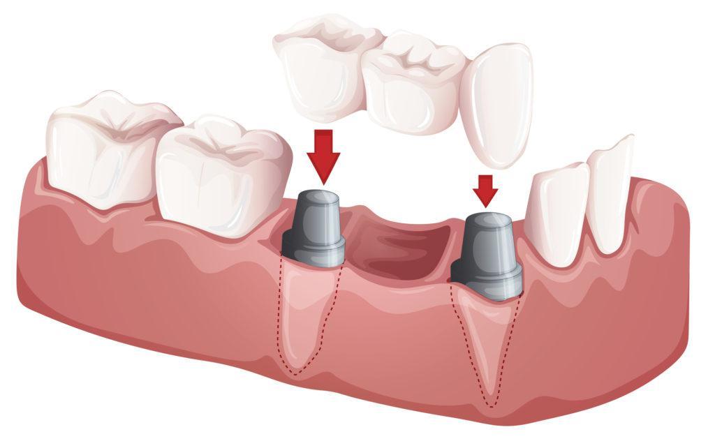 前歯が抜歯になったらブリッジで歯を入れるときの基礎知識 歯のアンテナ