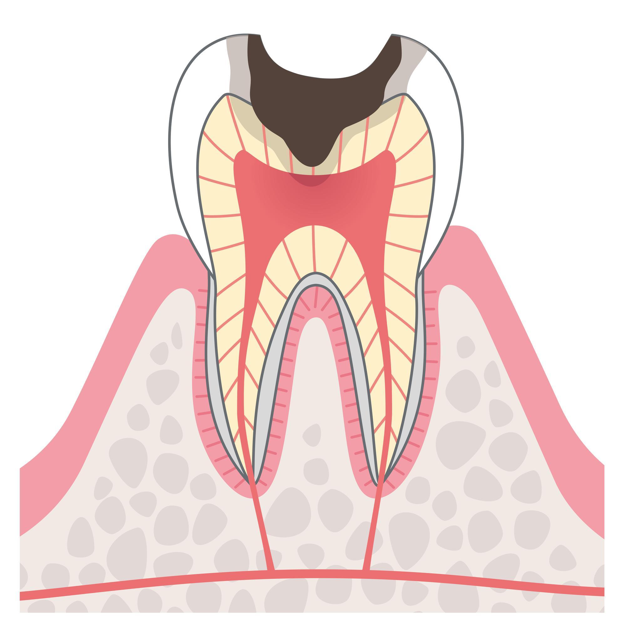 虫歯の断面イラスト