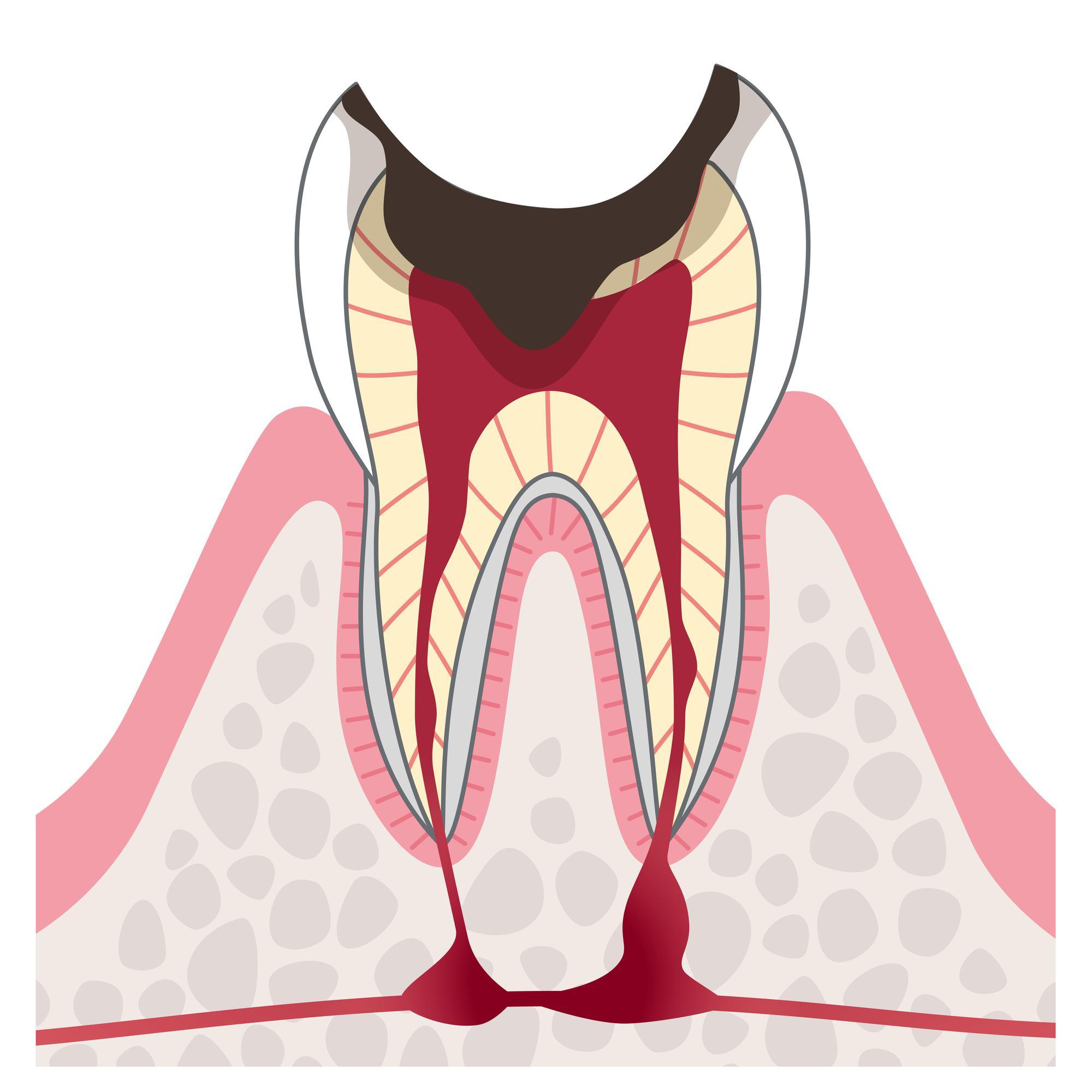 歯の根まで進行した虫歯イラスト