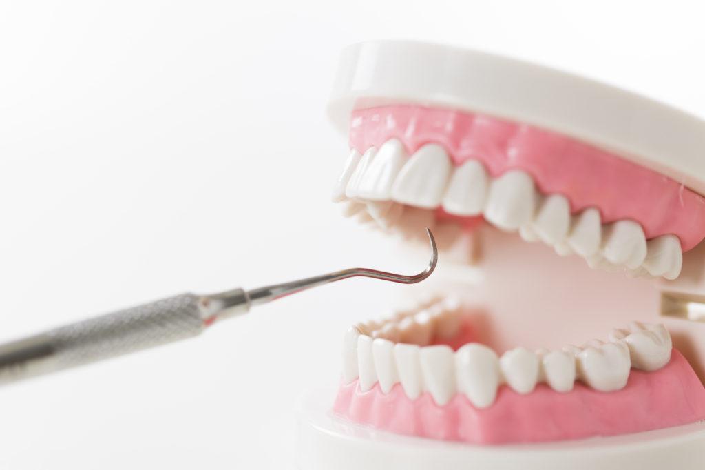 歯医者さんでおこなうPMTCのイメージ写真