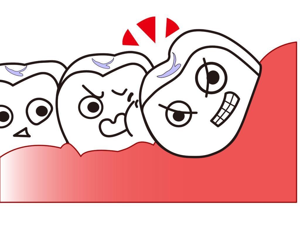 親知らずが隣の歯を圧迫