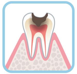 C3の虫歯の図解