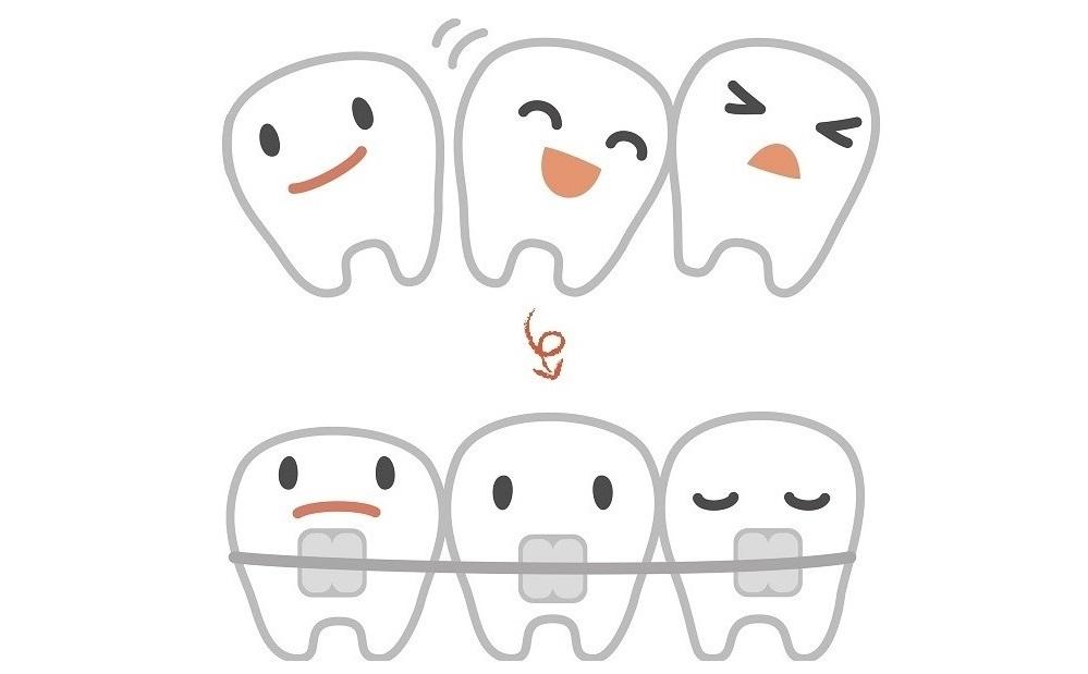 空隙歯列はすきっ歯のこと!原因・治療法・そのままにした場合の悪影響を解説