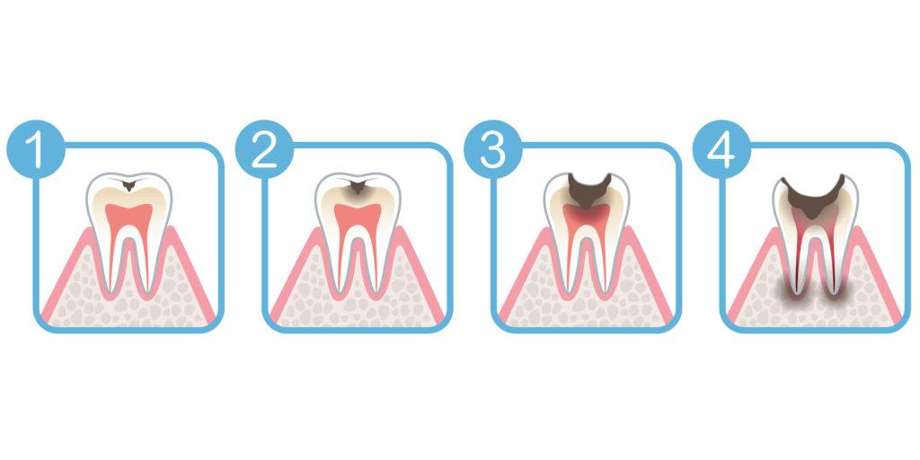 虫歯の進行度の図解