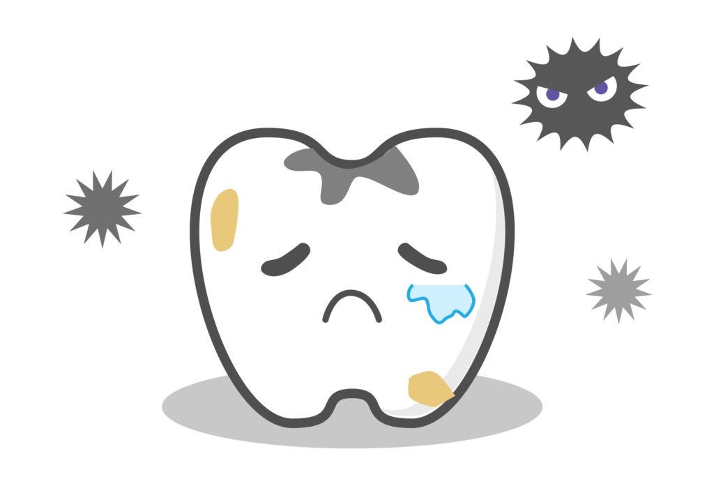 神経を抜き弱くなった歯