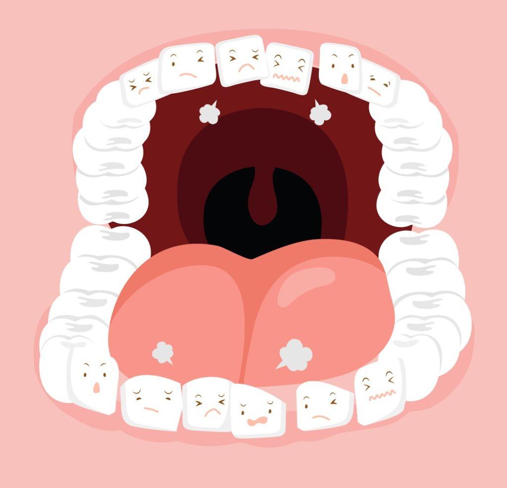 空隙歯列の歯