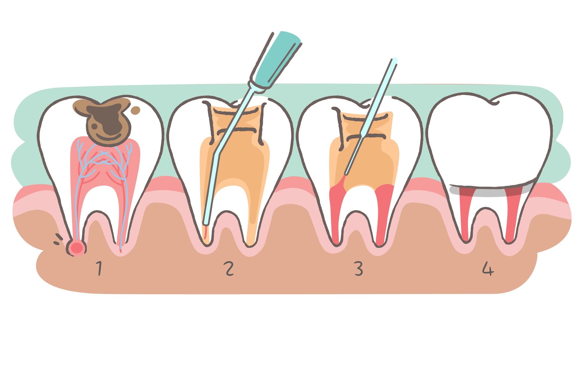 乳歯 神経