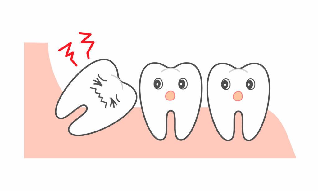 いつまで 親知らず 抜歯 痛み