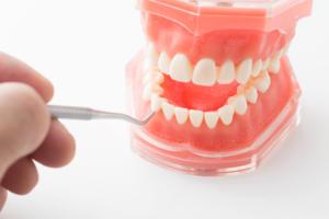 歯科検診 用語