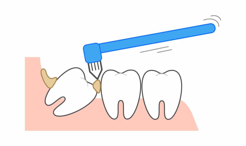 痛み 治ら の ない 喉