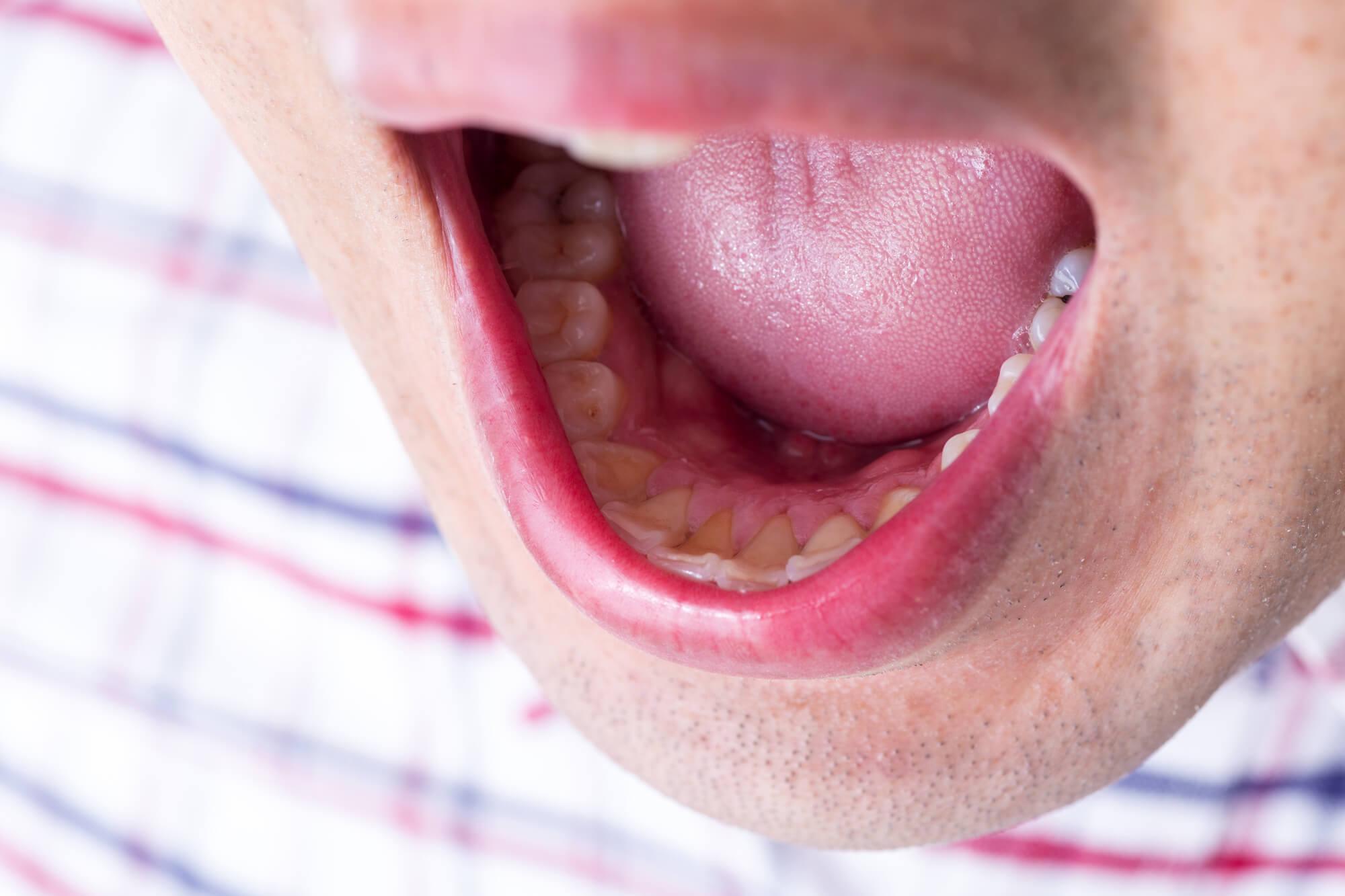 舌の病気 種類