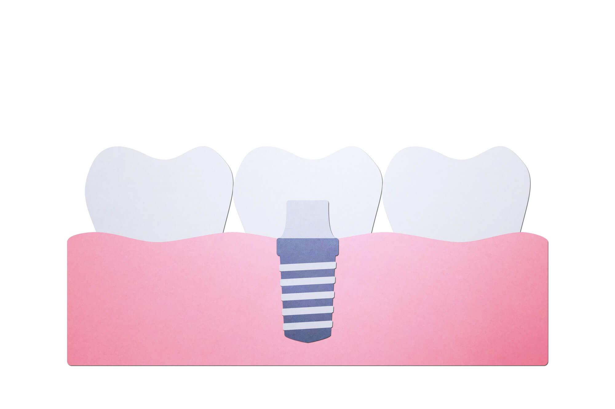 入れ歯 種類