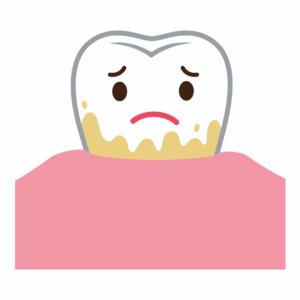 歯石 とは