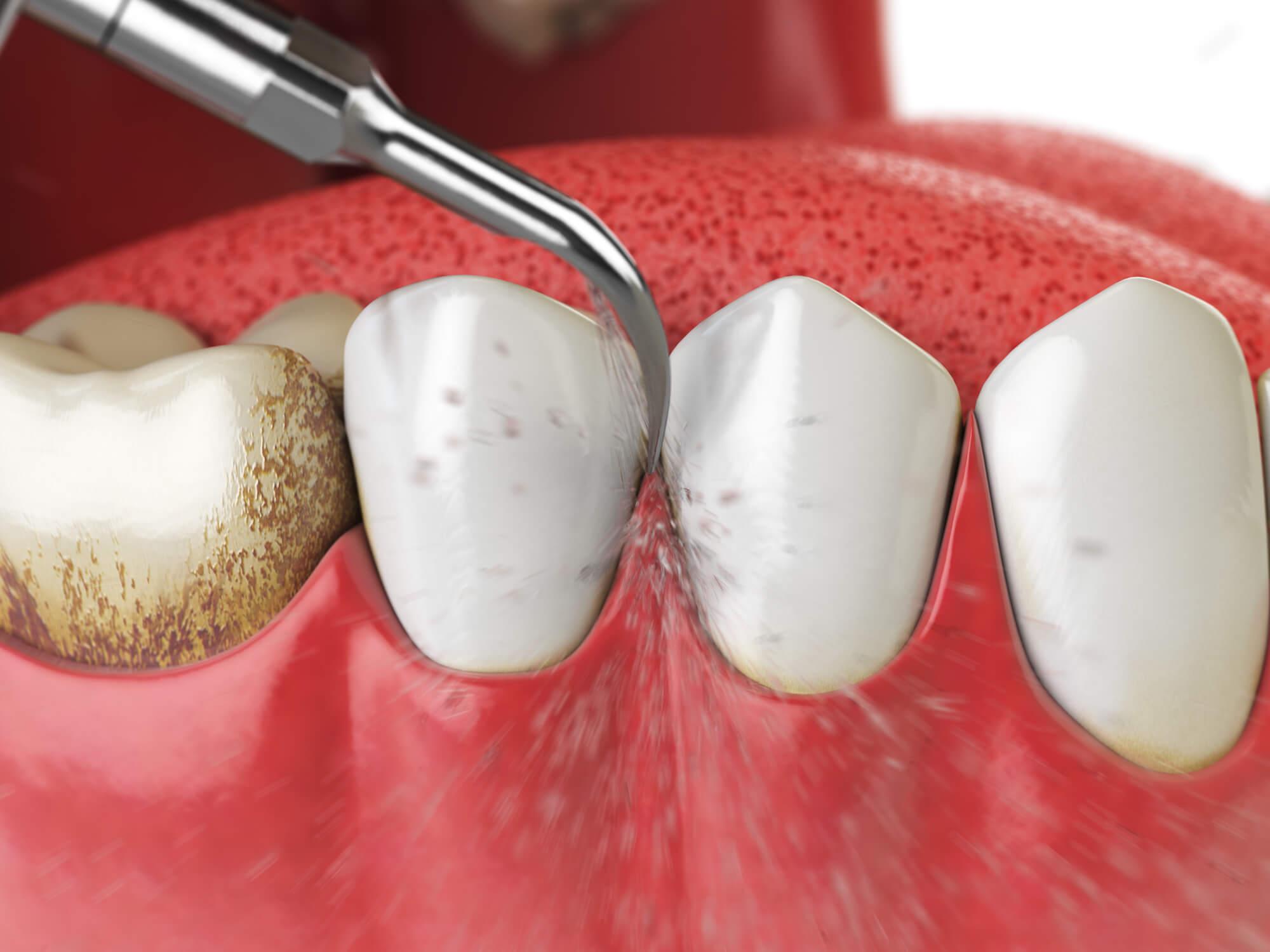 周 病 治療 歯