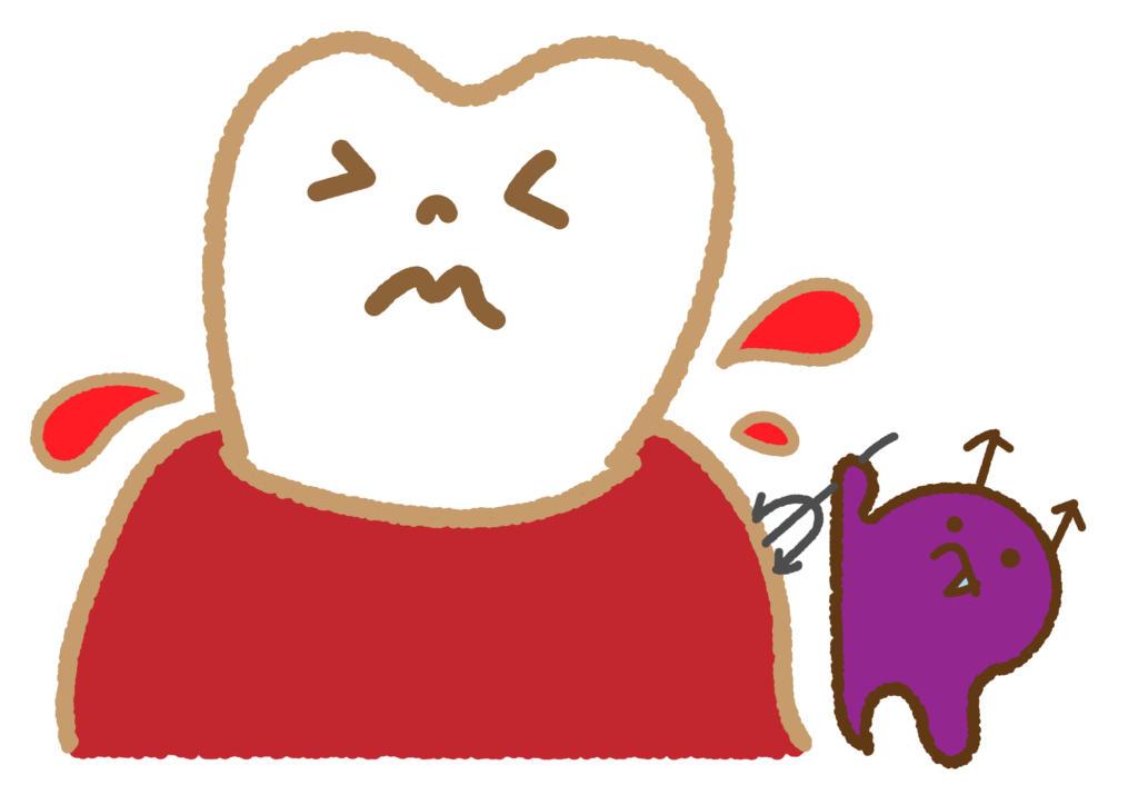 歯周病 歯肉炎 違い