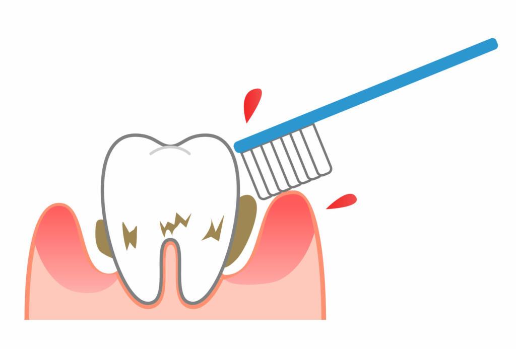 歯周病 検査