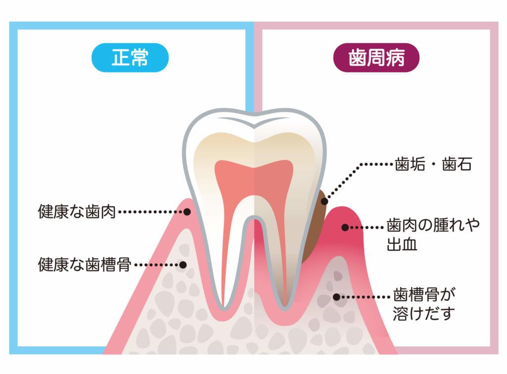 歯周病 抜歯 基準