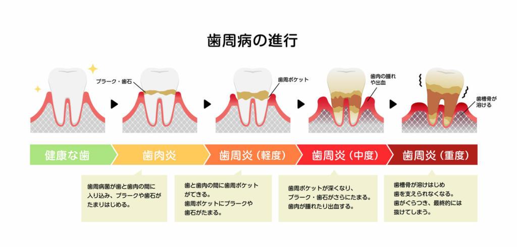 歯周病 予防 方法